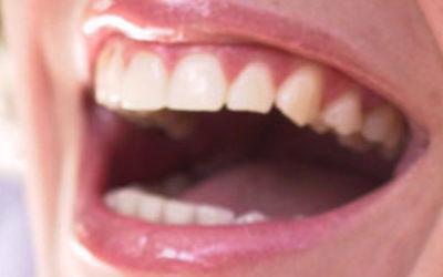 Co robić, aby mieć piękne, zdrowe zęby?