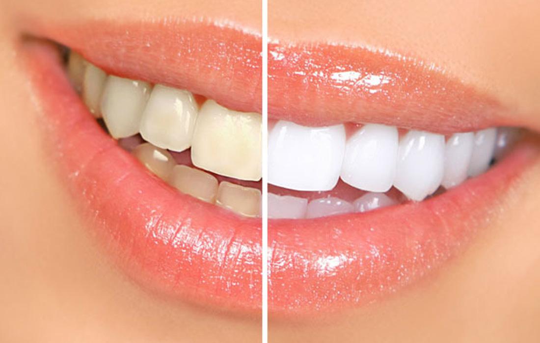 Wybielając zęby domowymi sposobami, możesz je zniszczyć